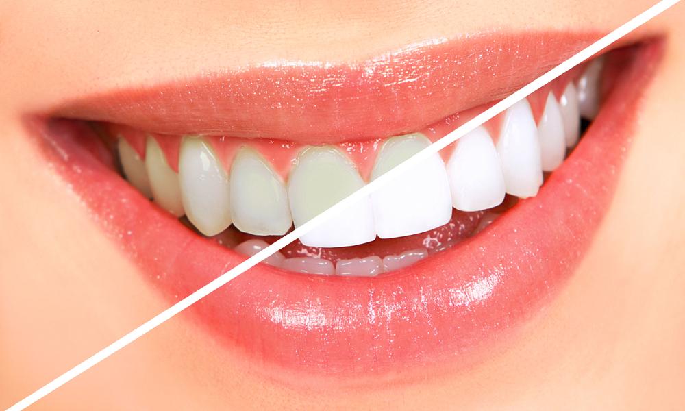 λεύκανση δοντιών (2)